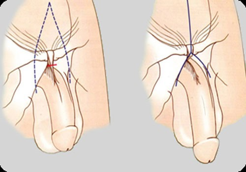 Ligament stretch penis Penis Exercises